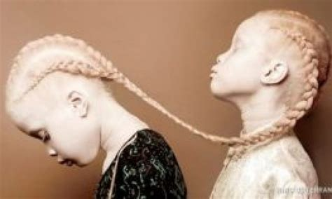 The Utterly Unique Albino Twins Has Stunned the Internet