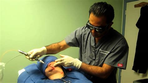 Laser Liposuction-Double Chin-Jowl-Jawline-Neck-Valley