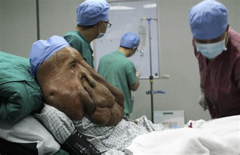 'Elephant Man' undergoes surgery to remove 3 pounds of