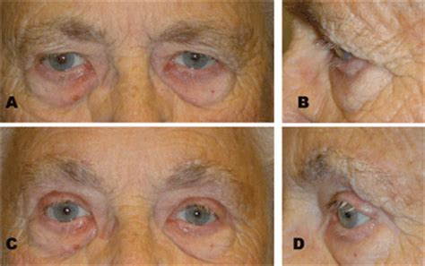 Brow Lift Techniques for the Ophthalmologist