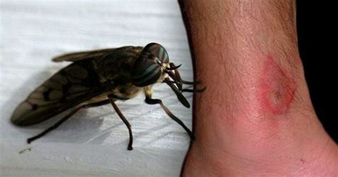 Here Are 8 Common Bug Bites And How You Can Recognize Them