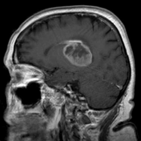 Antidepressants and blood thinners cause brain cancer